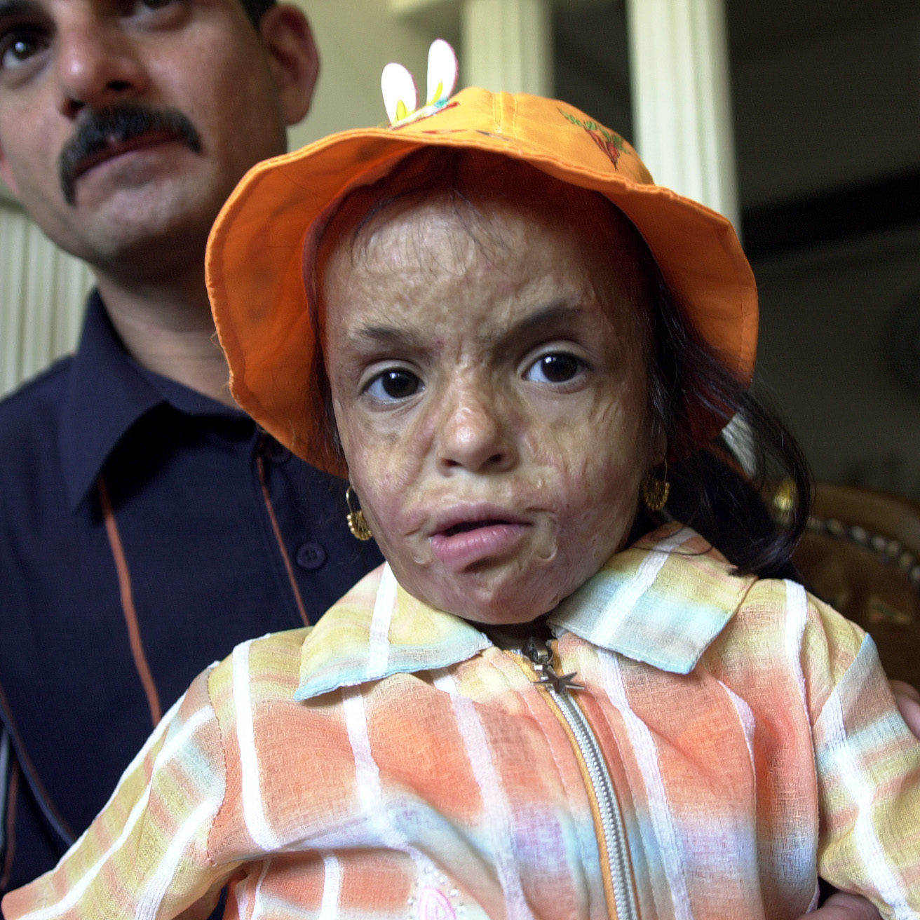 Teba Furat, 4, with her father Fahdel, 27, in Baghdad, Iraq, on June 5, 2006.  Teba suffered second degree burns on her face, scalp, and both hands during a roadside bombing in the provincial capital of Baquba on Sept. 2, 2003.  Fahdel worries his daughter's deformities will trouble her when she begins school next year, and may burden her throughout her life if not corrected. Iraqi plastic surgeons, once limited to correcting congenital defects and performing elective cosmetic surgery, now say they are inundated with war-related injuries.   JAMES PALMER/FOR THE STAR-LEDGER